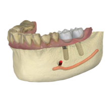 Logiciel CFAO Dentaire